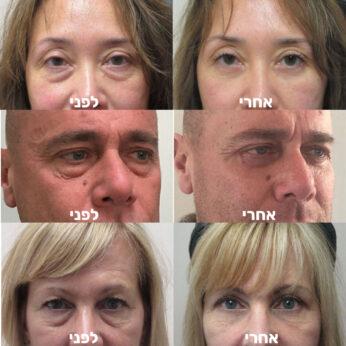 מסכת גל לשקיות בעיניים - לפני ואחרי
