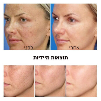 מסכה להבהרת העור
