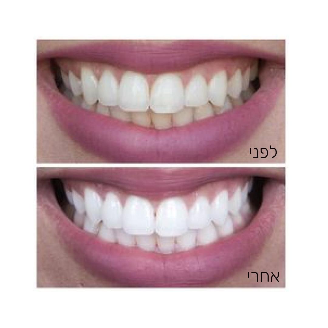 הלבנת שיניים ברגע