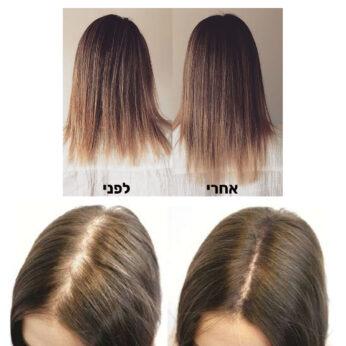 שמן לצמיחת שיער